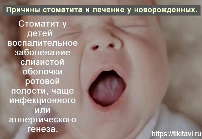 Стоматит у новорожденных причины, лечение